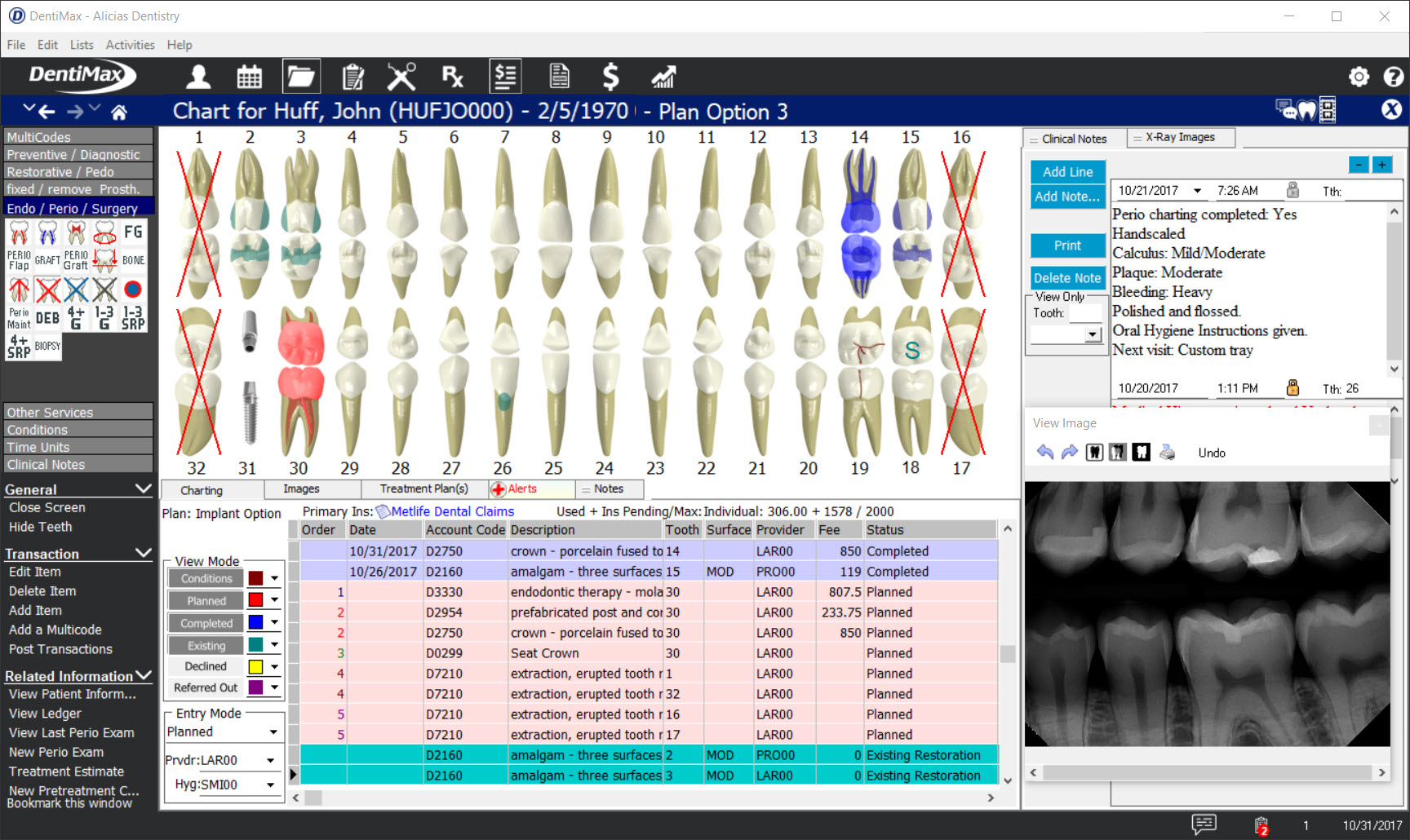 Screenshot of dental software with the Max package