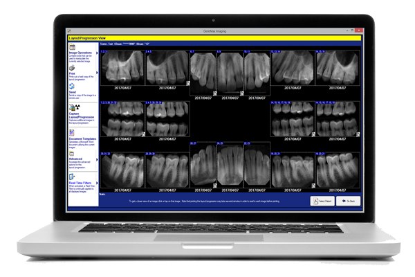 Photo of laptop with DentiMax Dental Software running on it