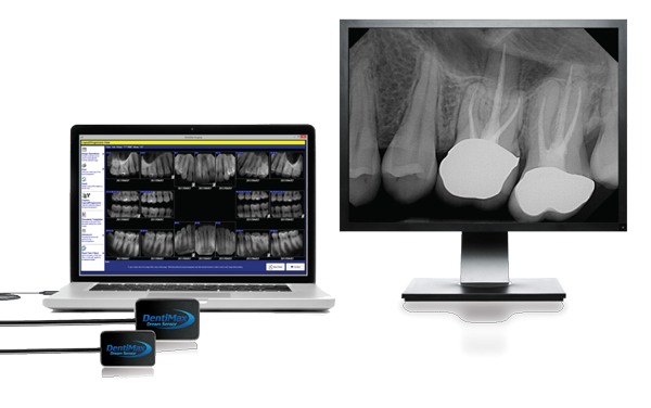 Picture of computer monitor with Dentimax Dental sensor